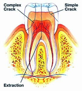 cracked or fractured tooth, dentist, Minneapolis, Hopkins