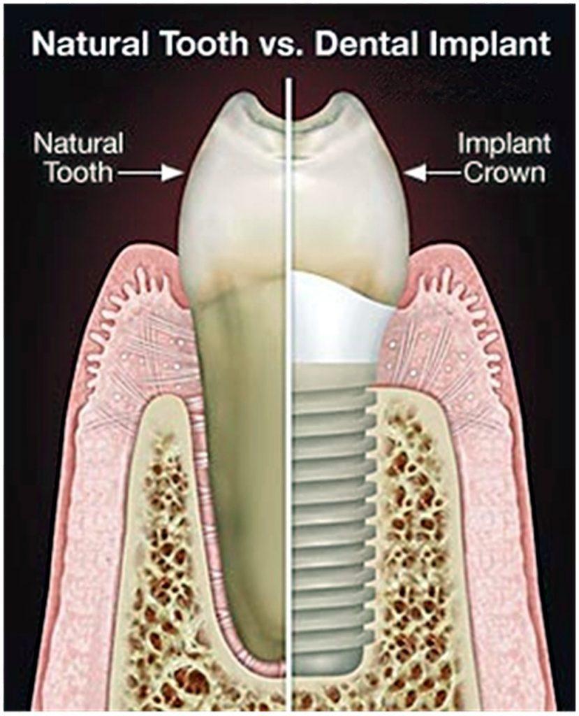 Dental Implants Minneapolis Hopkins, Minnetonka, Eden Prairie, St ...
