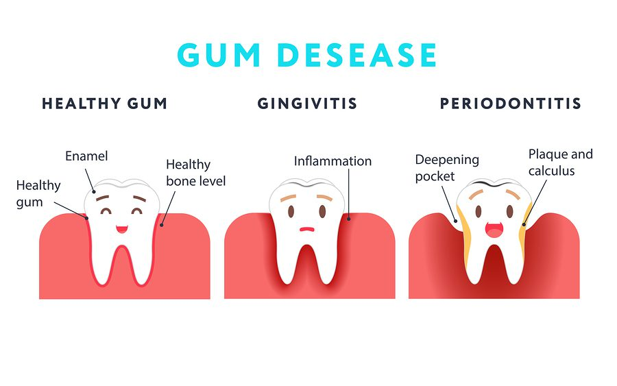 gumdisease, periodontal disease